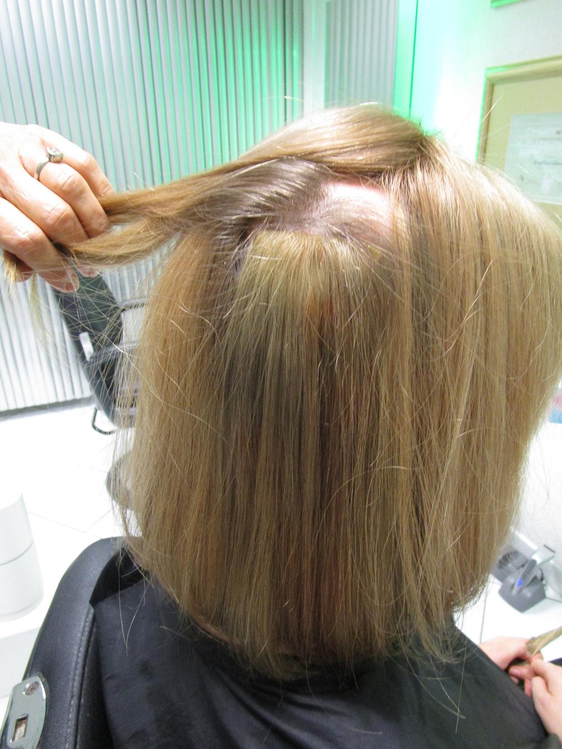 Kreisrunden Haarausfall