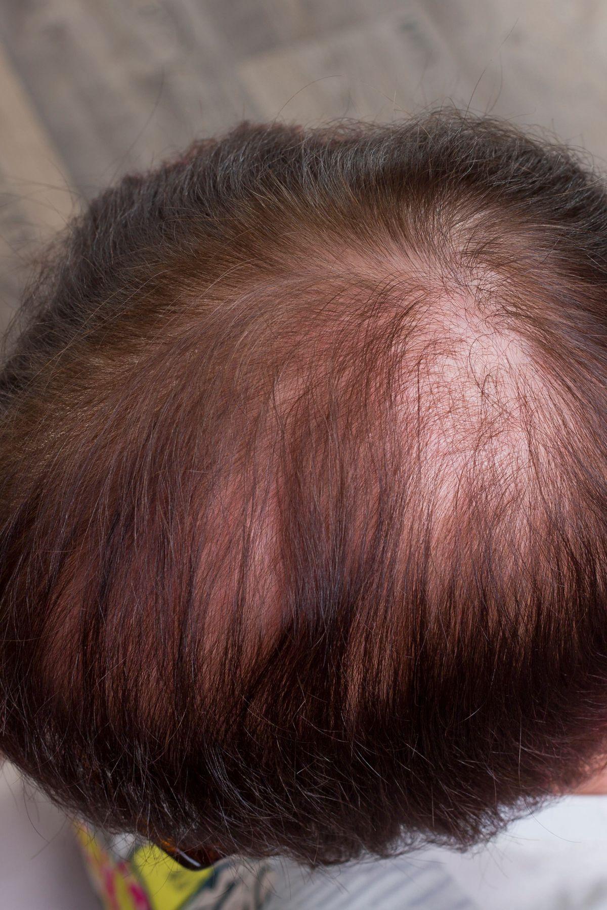 Gegen Haarausfall Frau
