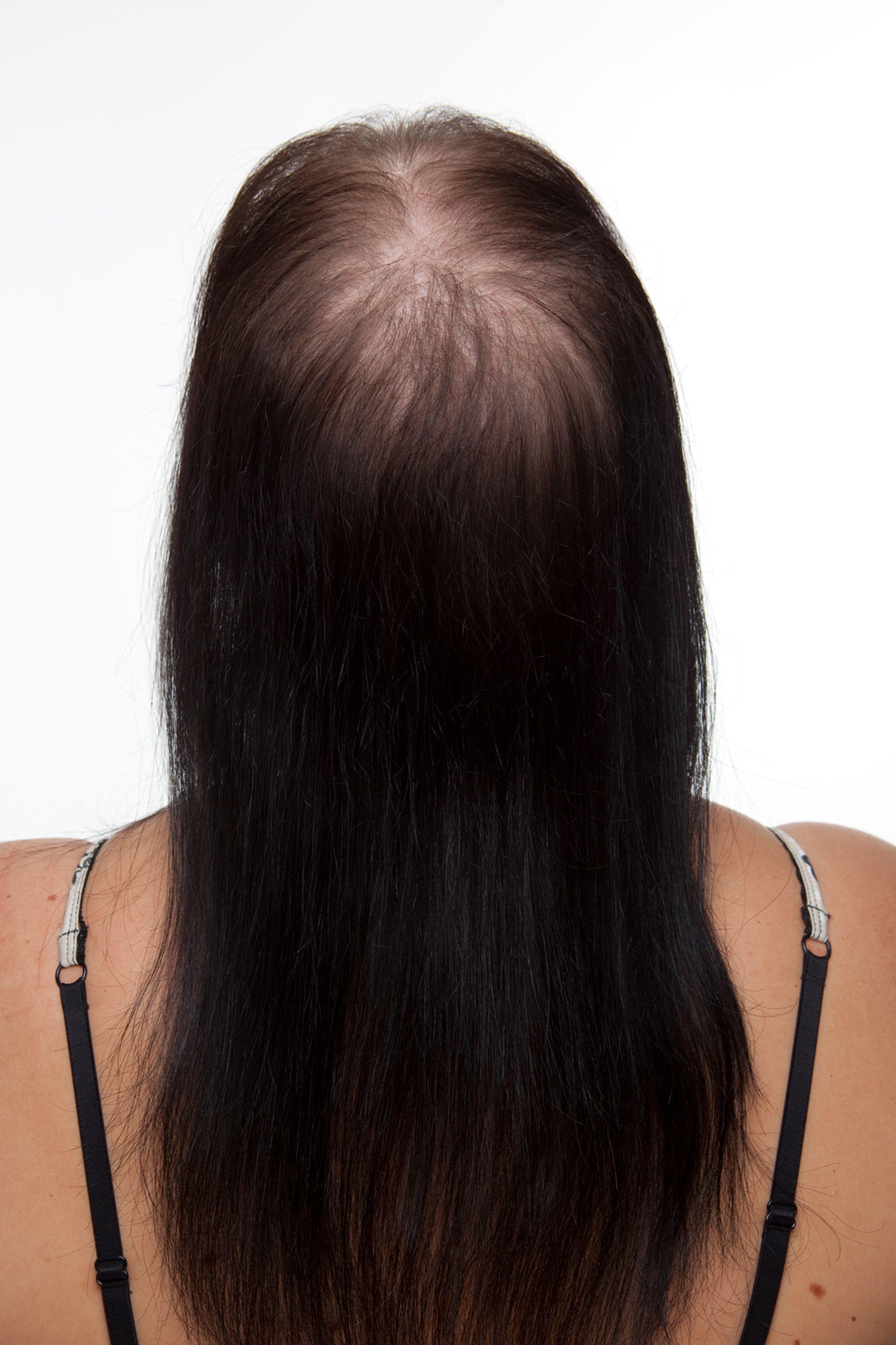Mittel Gegen Haarausfall Leichter Gut Sitzender Haarersatz